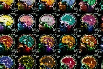corrida-cerebro